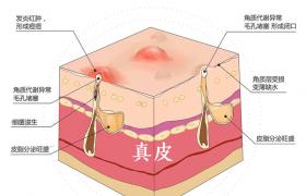 武汉爱思特集团首届皮肤再生医学研讨会,专注修复皮肤问题